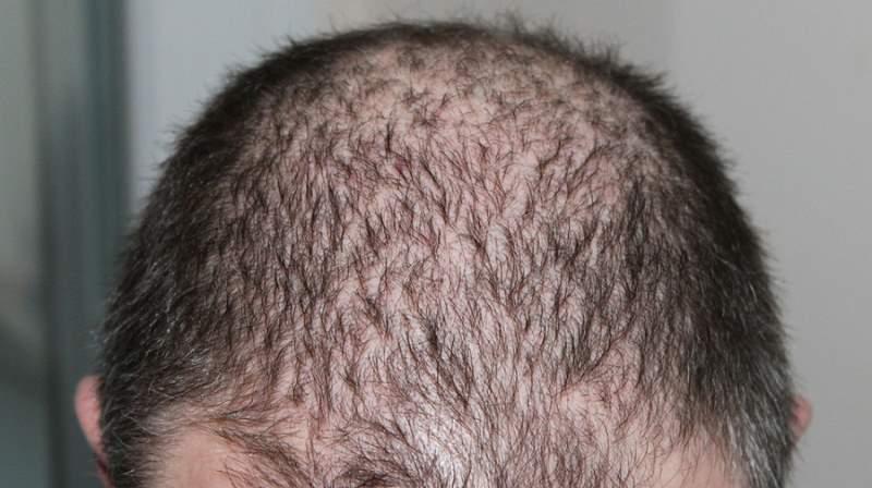 Caduta dei capelli, dai rimedi alle informazioni utili